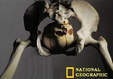 LIBERAL BONES FROM 10,000 YEARS AGO