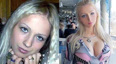 Valeria Lukyanova, BEFORE Plastic Surgery