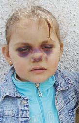little muslim girl beaten by imam