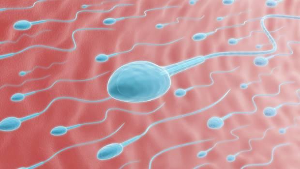 Лечение бесплодия израиль выращивание сперматозоидов